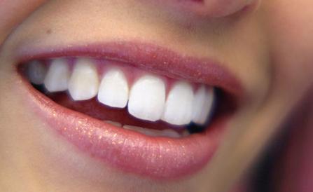 Επηρεάζονται τα δόντια με την λεύκανση;