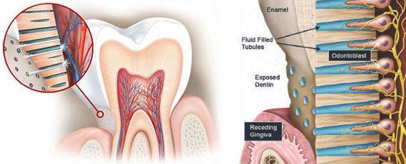 Υπερευαισθησία της οδοντίνης
