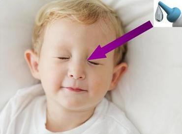 Ένα μικρό 'tip' για τα οφθαλμικά κολλύρια στα παιδιά