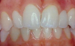Εμφυτεύματα δοντιών- οτι θα θελατε να ρωτησετε τον ειδικο σχετικα με αυτα !Δρ Ευα Δουβαρα PhD