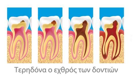 Τερηδόνα ο εχθρός των δοντιών
